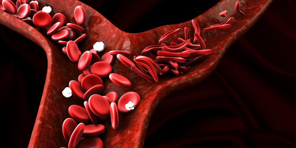 Treat and Prevent Anemia