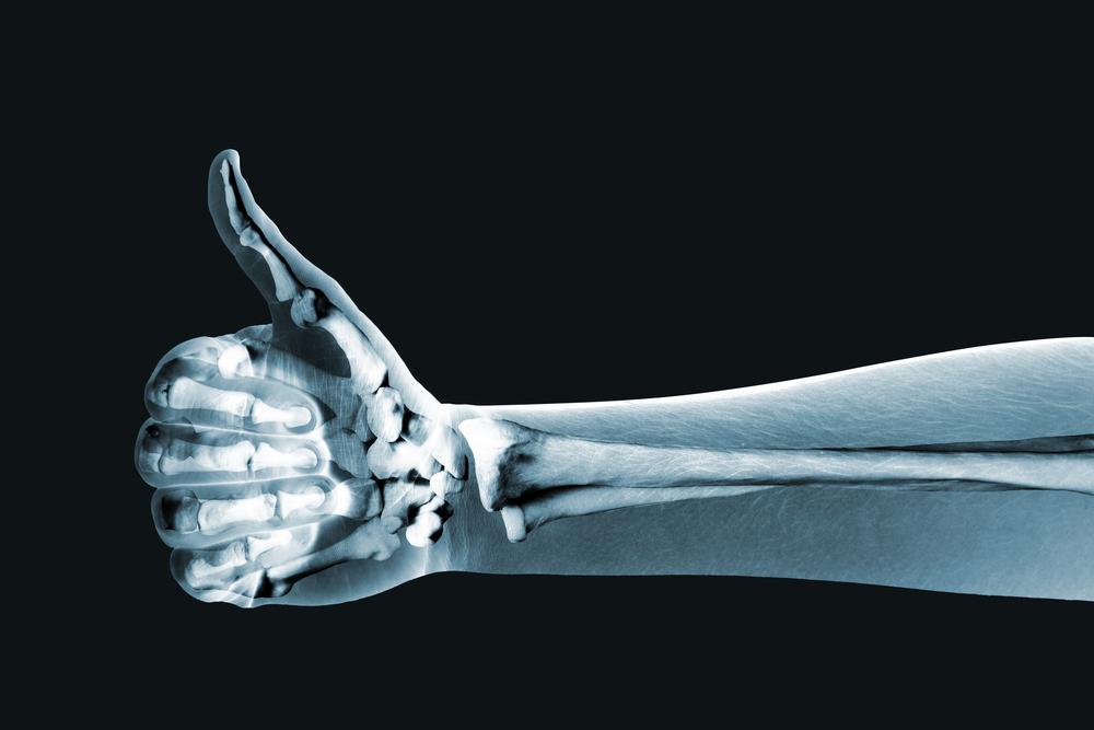 Fennel bone health