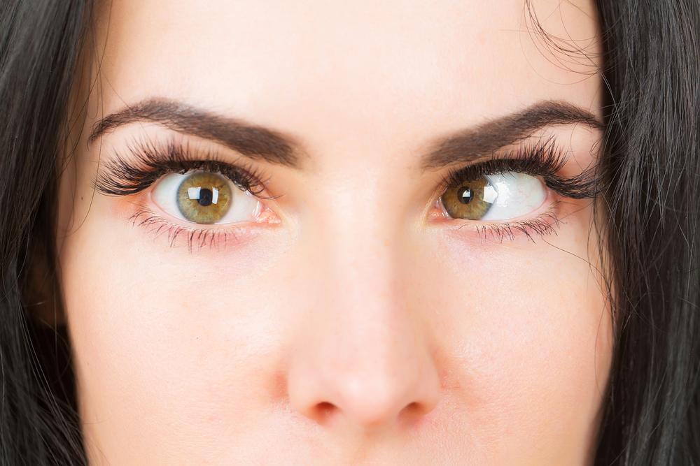 Adult-onset strabismus risk factors