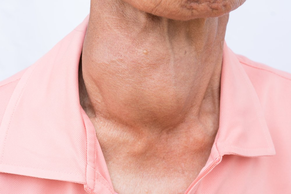 Overactive Thyroid Symptoms