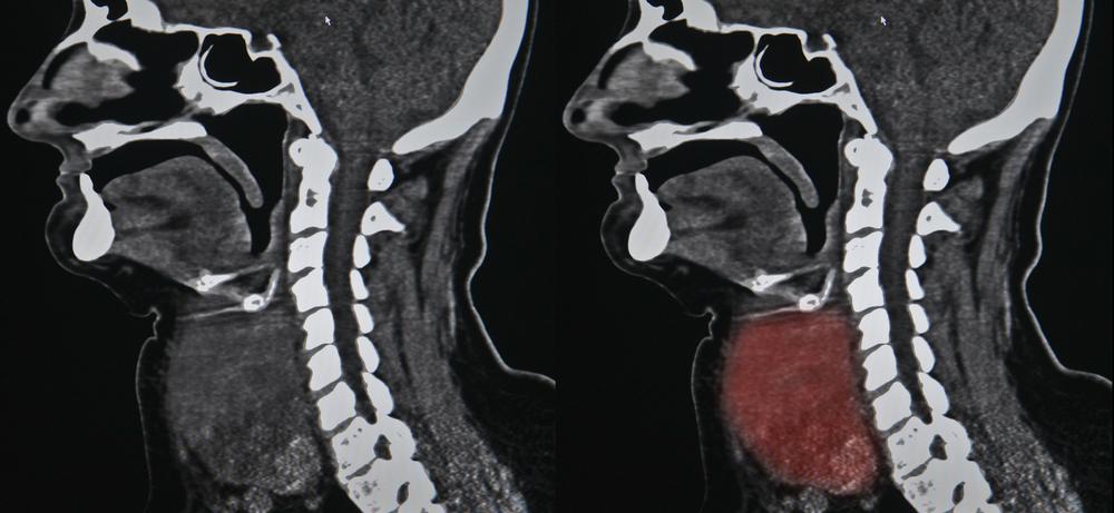 Rare Tumors