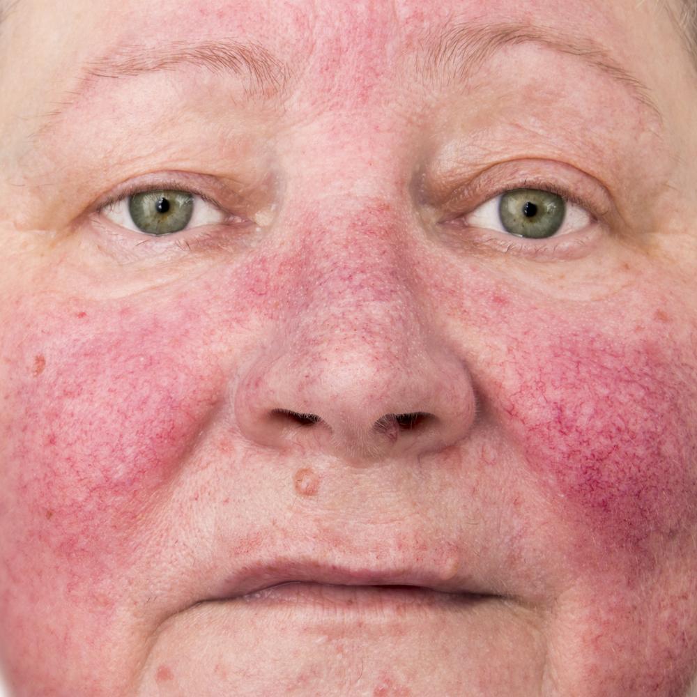 Rosacea Skin diseases
