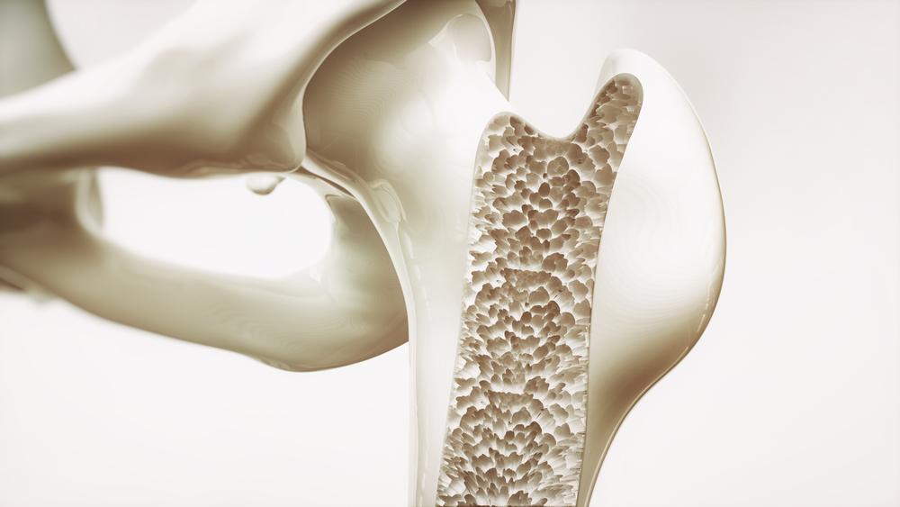 Strengthens Bones Prune