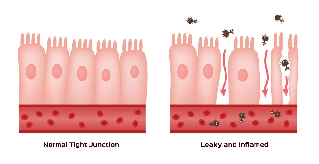 Treat leaky gut syndrome