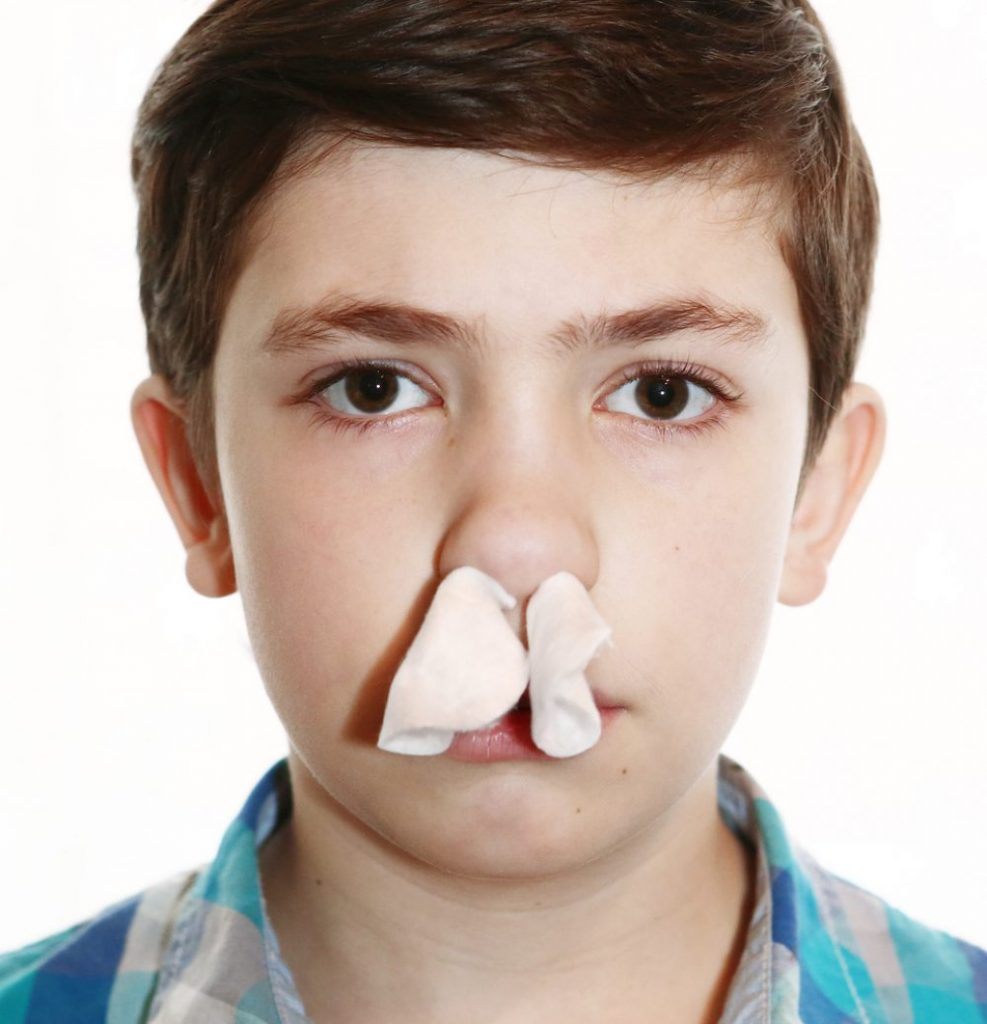 What are the Different Types of Nosebleeds?