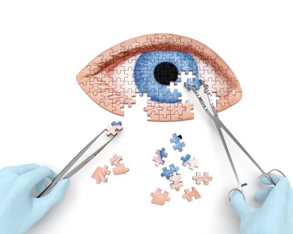 Tear eye surgery
