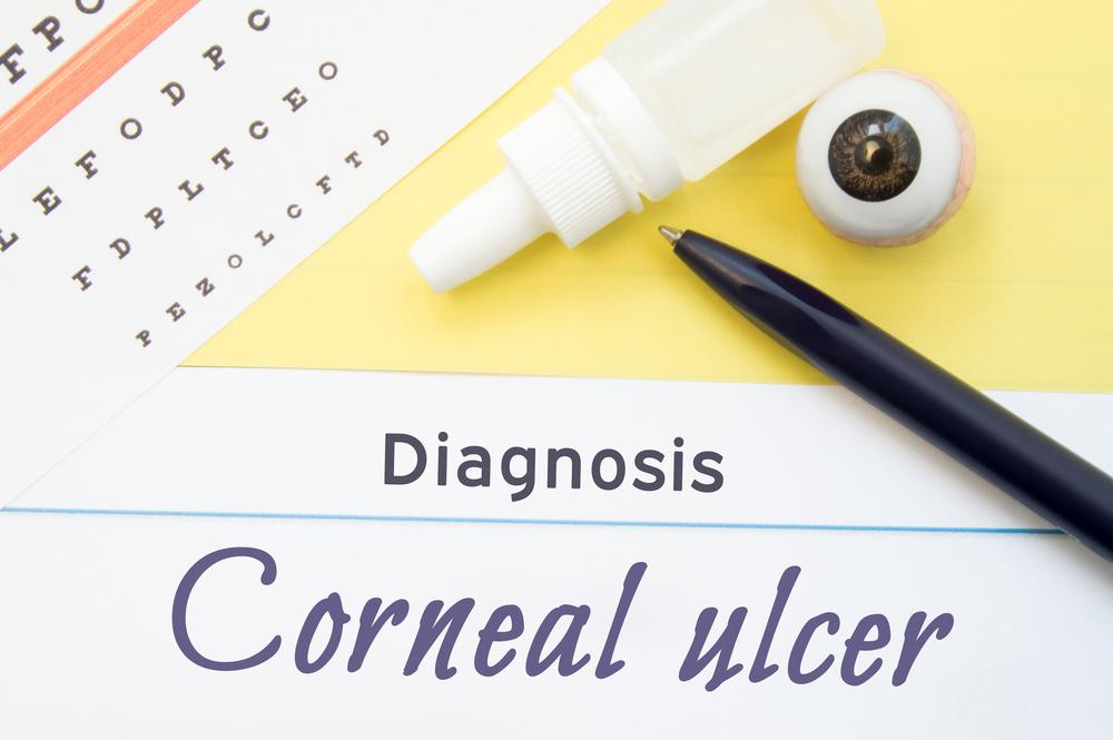 Diagnosis Corneal Ulcer