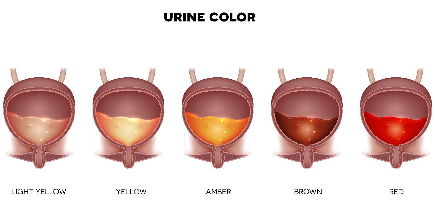 Cardamom  urine