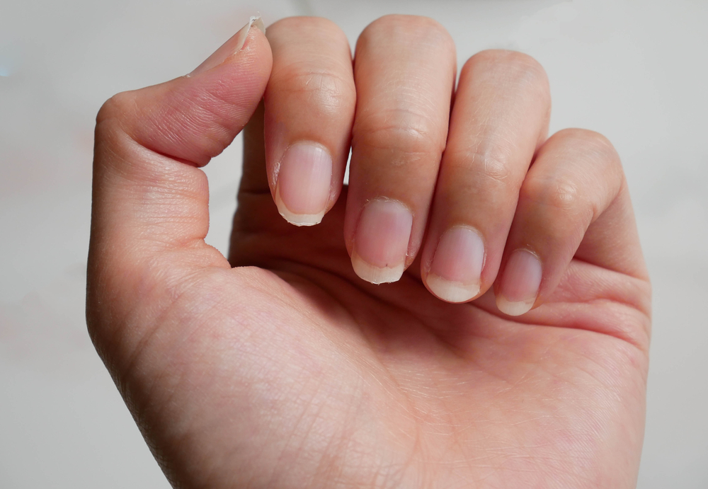 Hair and Nail Growth Benefits From Gelatin