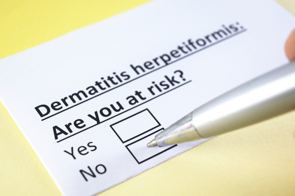 Dermatitis Herpetiformis risks
