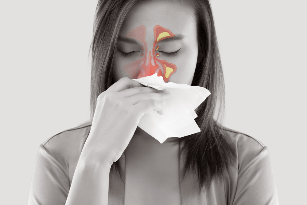 what causes nasal polyps