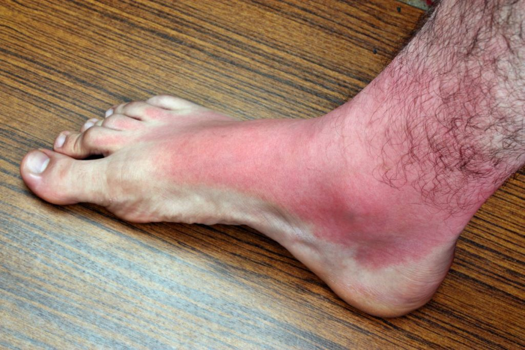 skin texture health benefits of sea buckthorn
