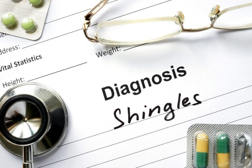 treating shingles