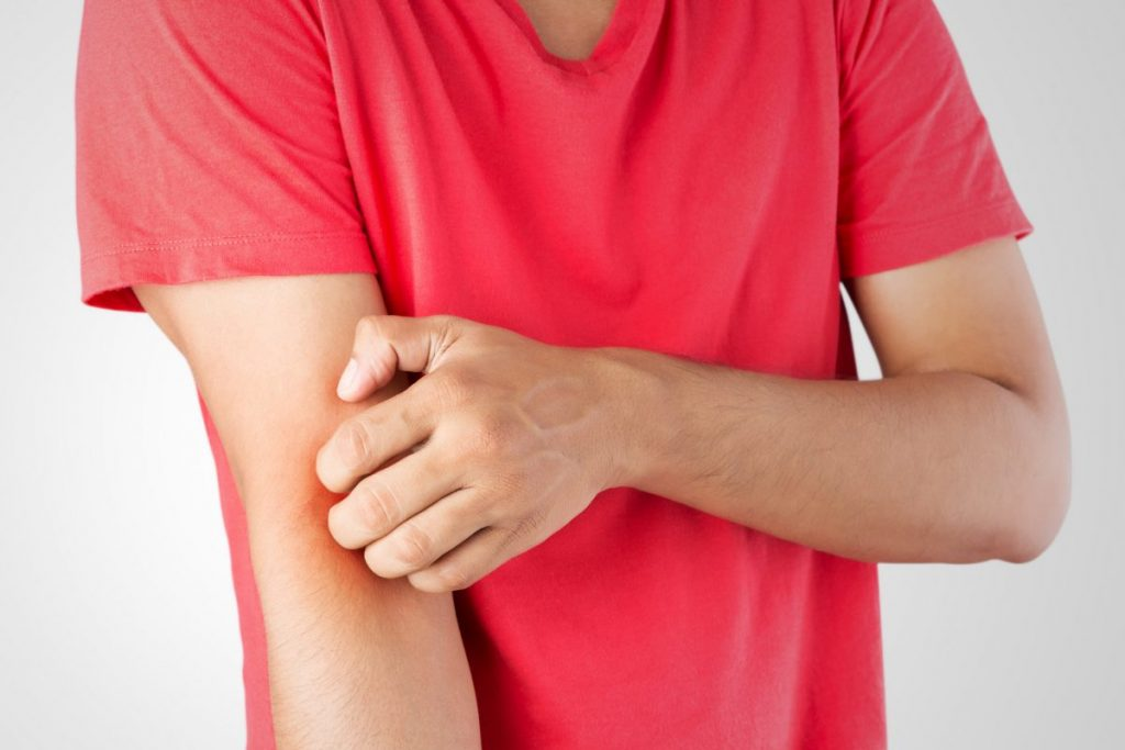 causes prurigo nodularis