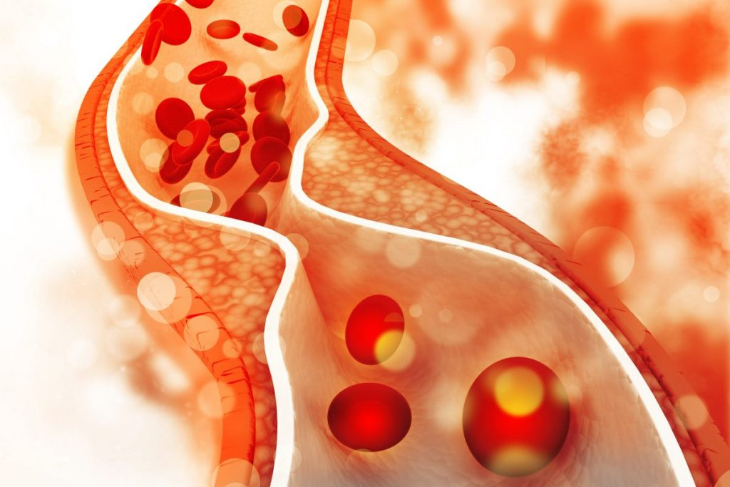 atherosclerosis complications hypertension