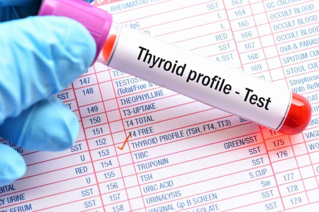 Thyroid Hyperthyroid Hypothyroid Hormone