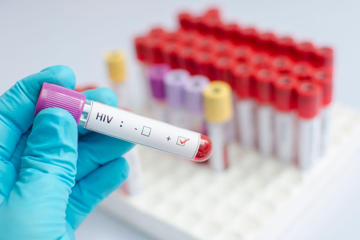 HIV apitherapy