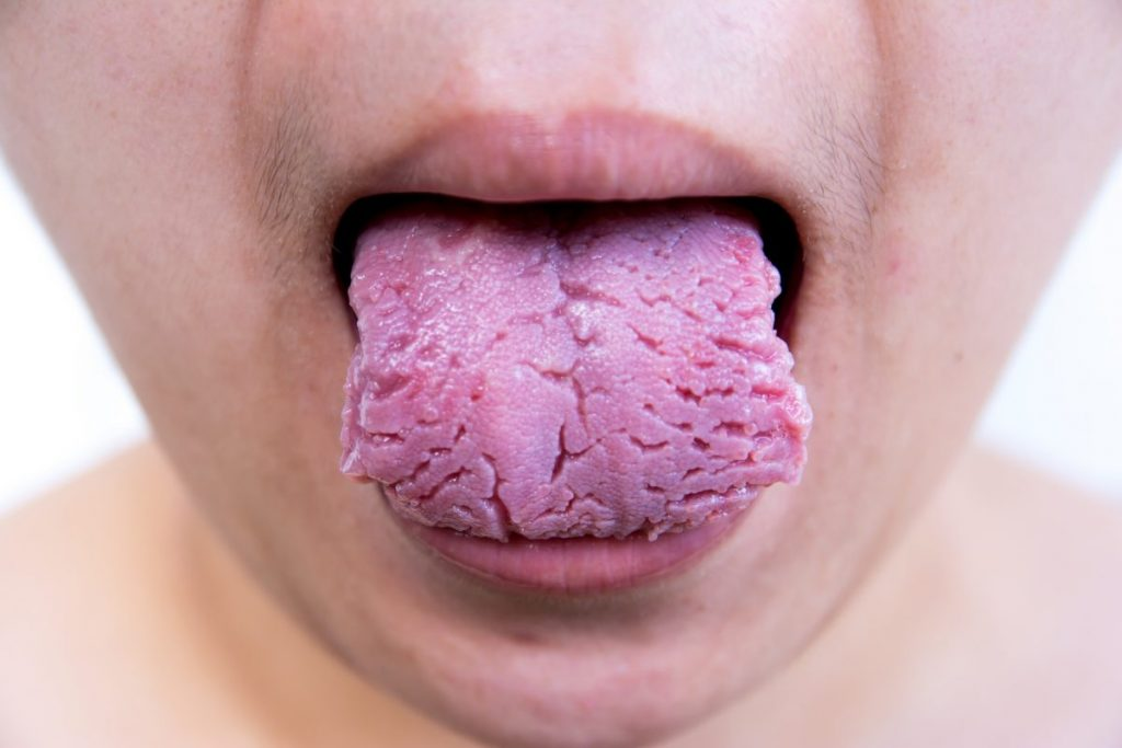 fissured tongue oral psoriasis