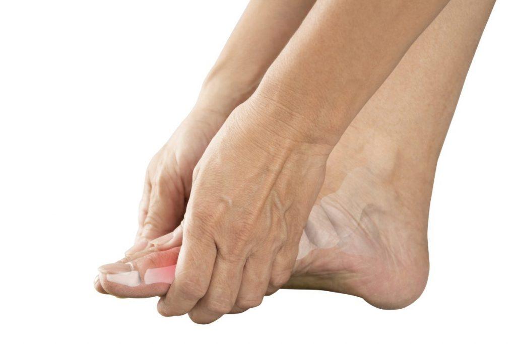 Gout Attack Symptoms Big Toe