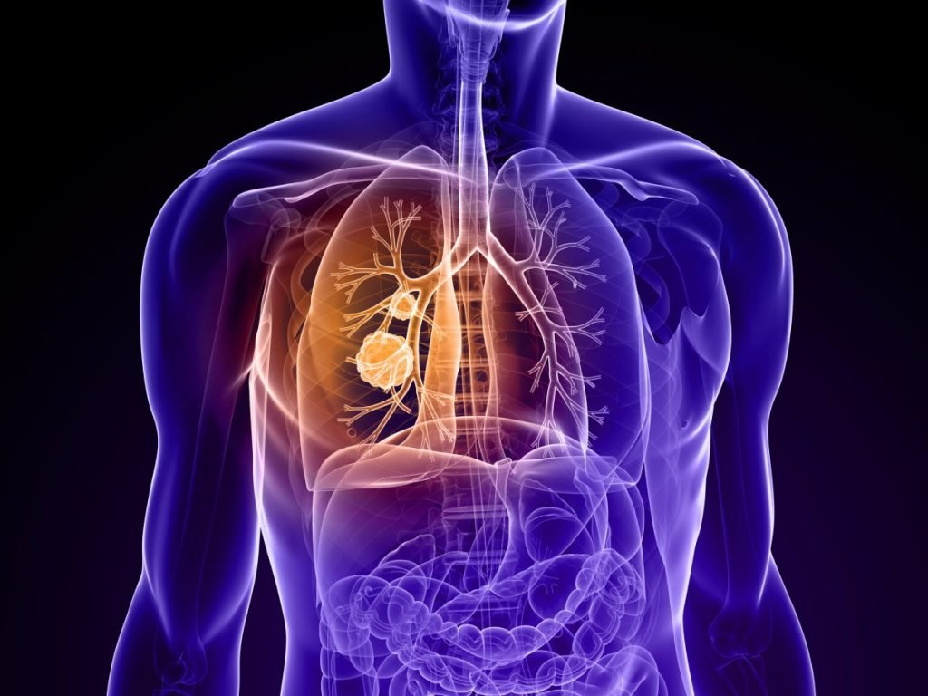 lung cancer inflammation NOx exposure