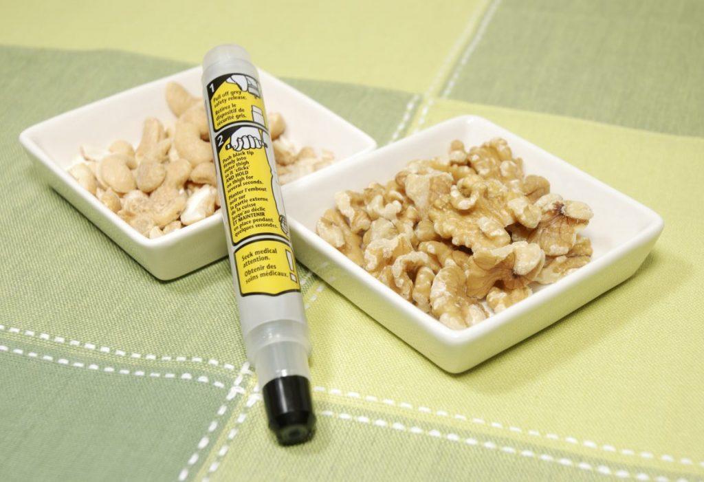 symptoms of nut allergies