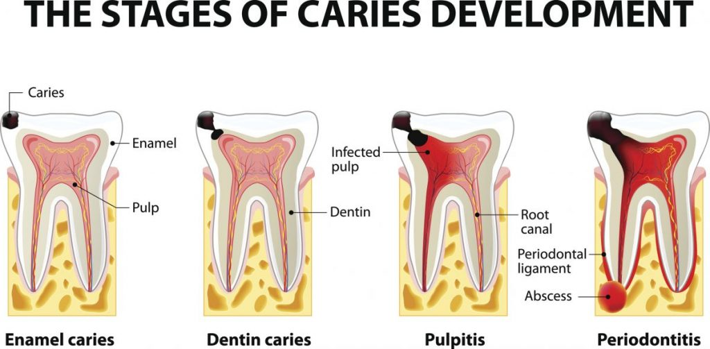 causes of dental abscesses