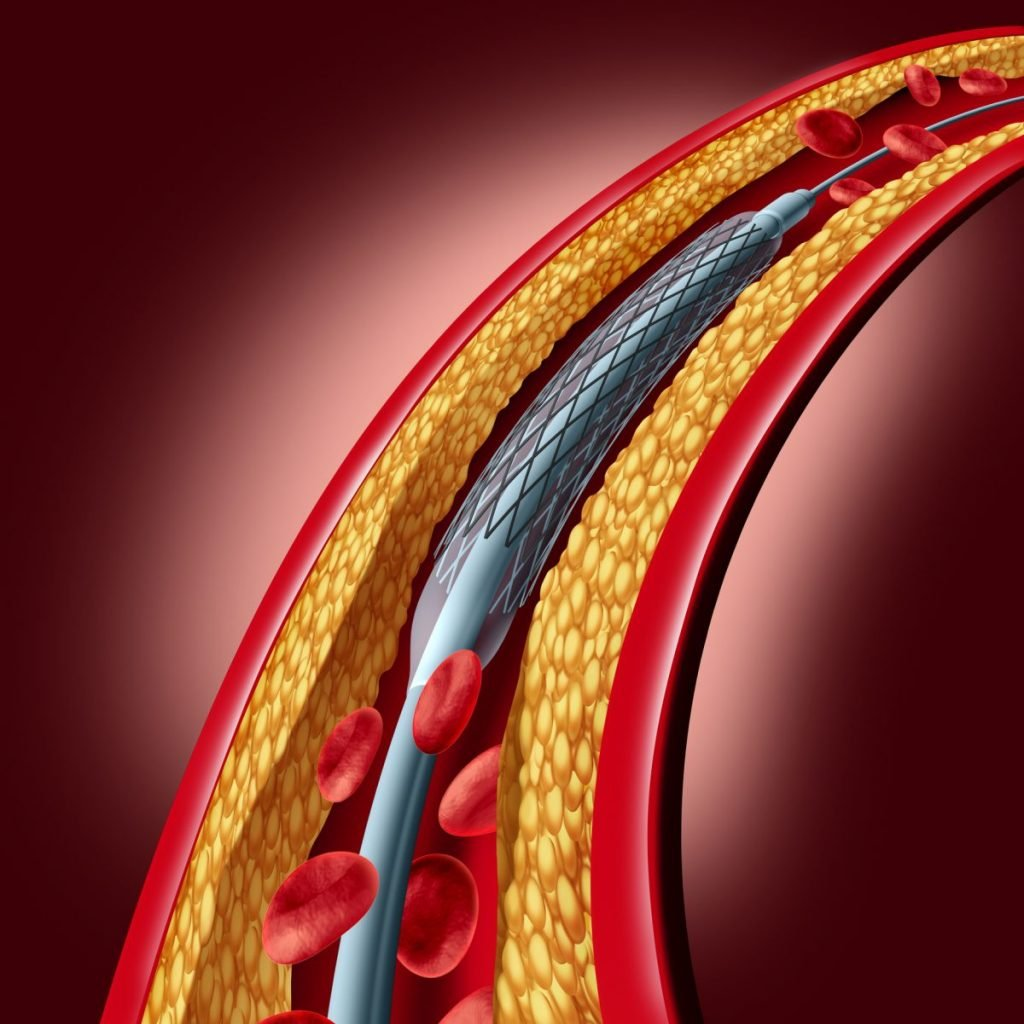 arteries stable angina