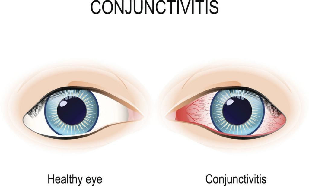 conjunctivitis  What is adenovirus