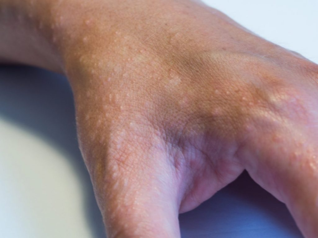 signs of discoid eczema