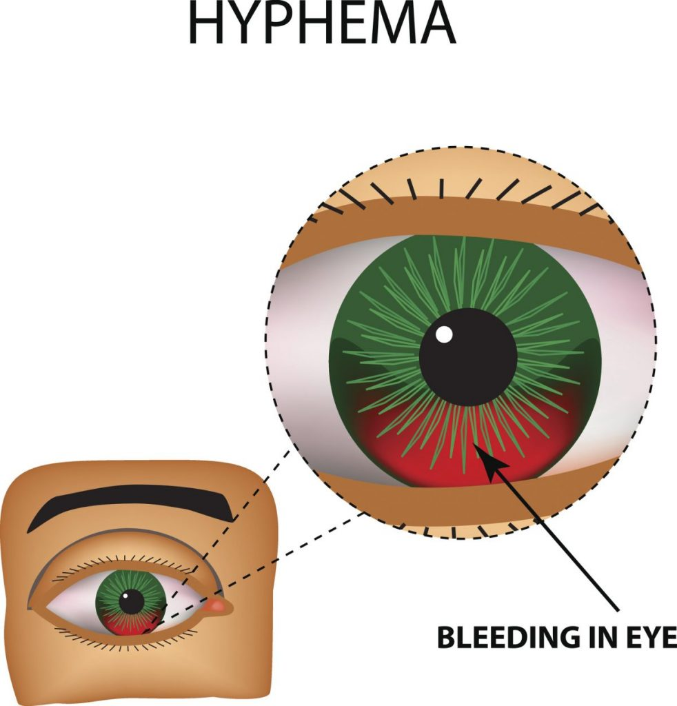 advanced hyphema