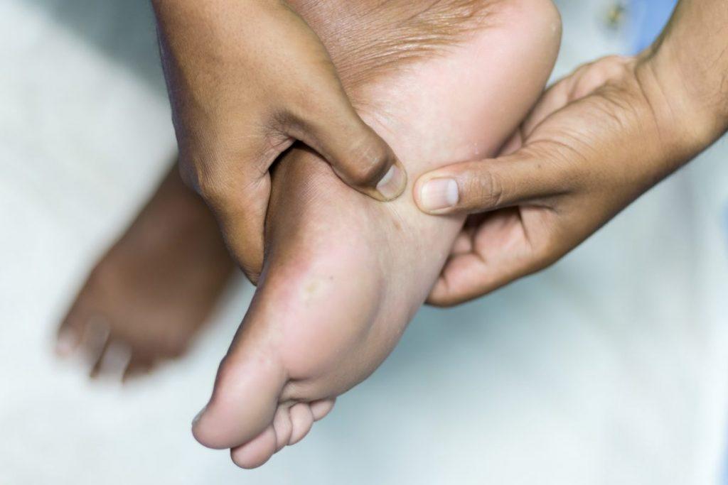 feet bone spurs