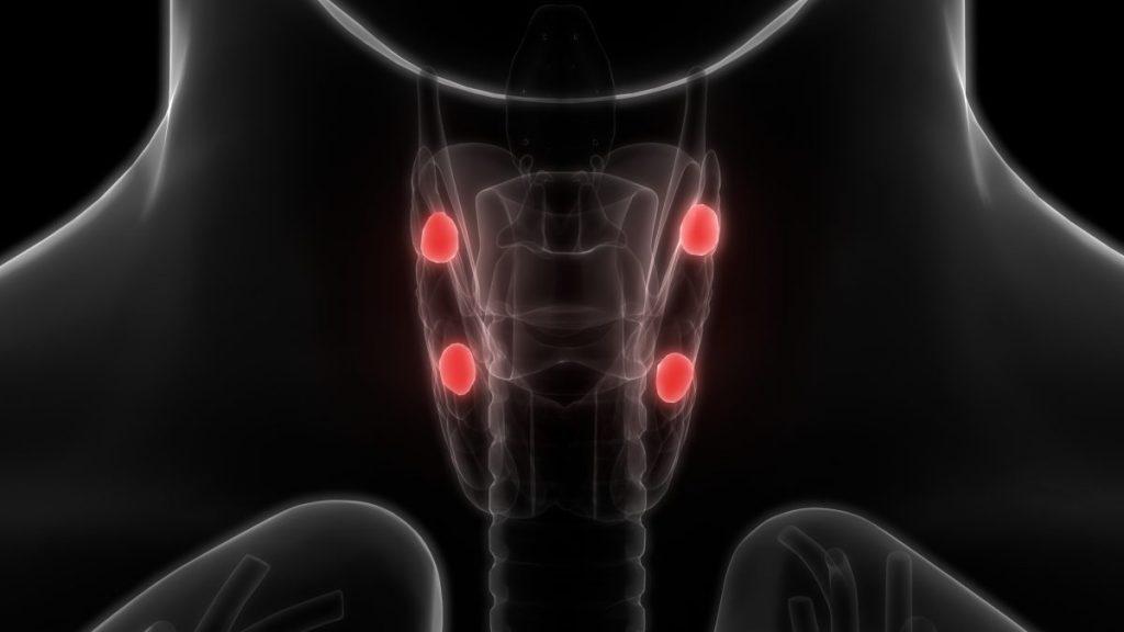 hypercalcemia treatments