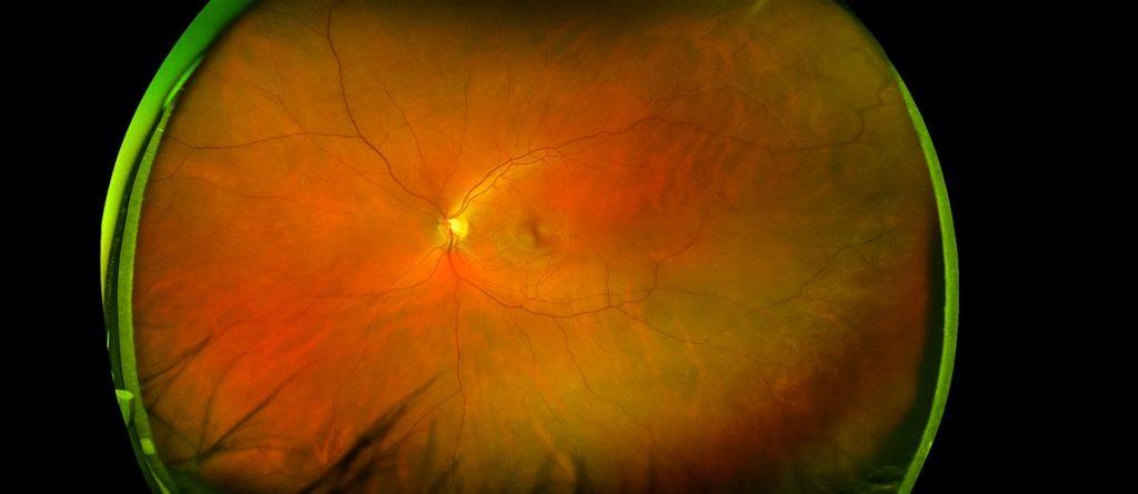 what is Retinitis pigmentosa