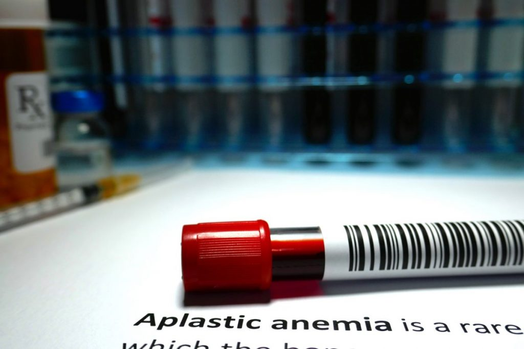 aplastic anemia blood disorder