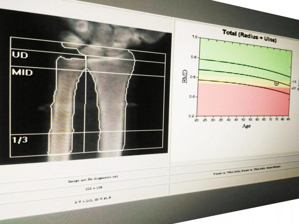 what to expect from a bone density test