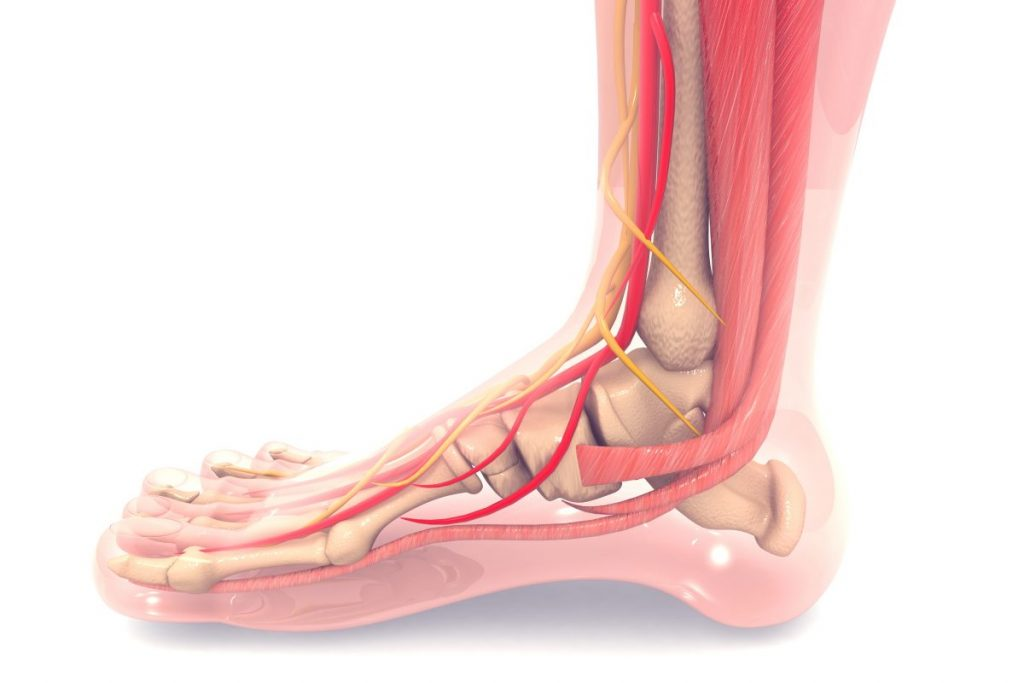 do i have Achilles tendinopathy