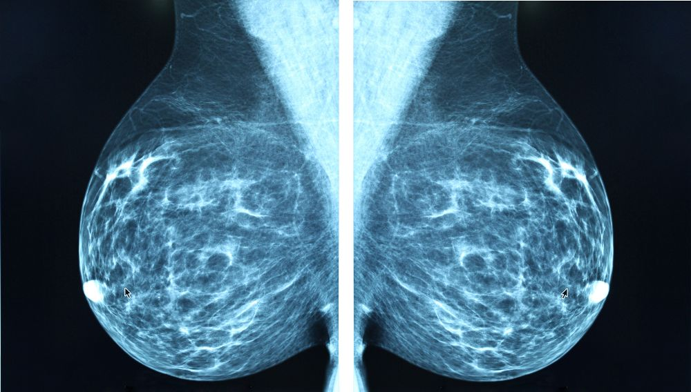 mammogram breast lumps