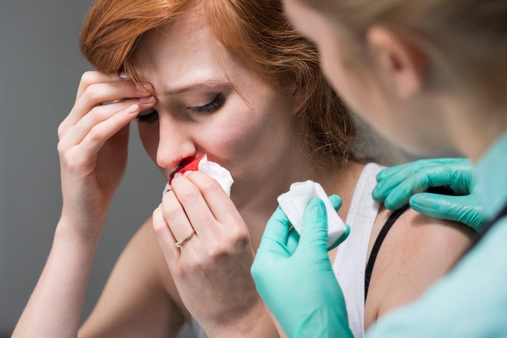 emergency treating nosebleeds