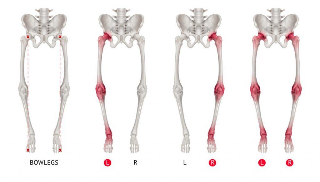 alignments varus deformity
