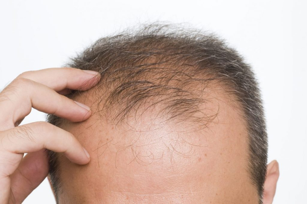 types of diffuse hair loss