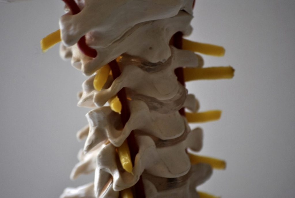 surgery for cervical radiculopathy