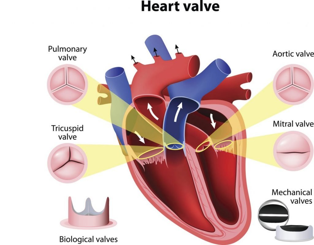 aorta Aortic valve insufficiency