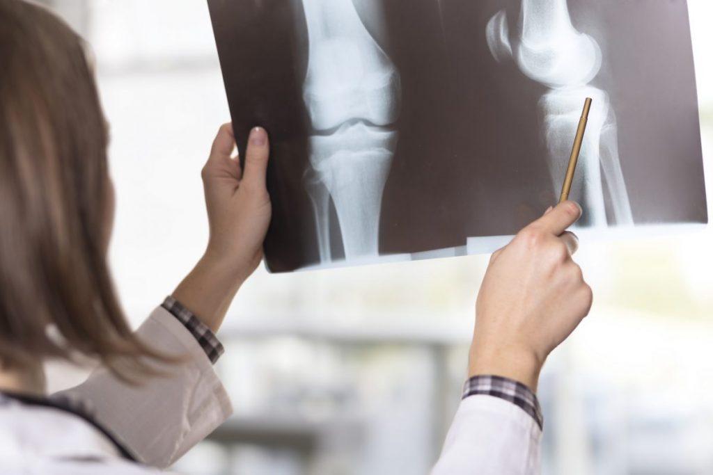 diagnosing Pigmented Villonodular Synovitis