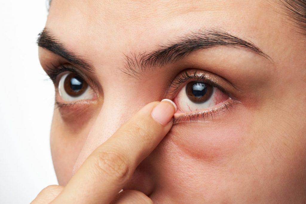 Dry eye syndrome serious