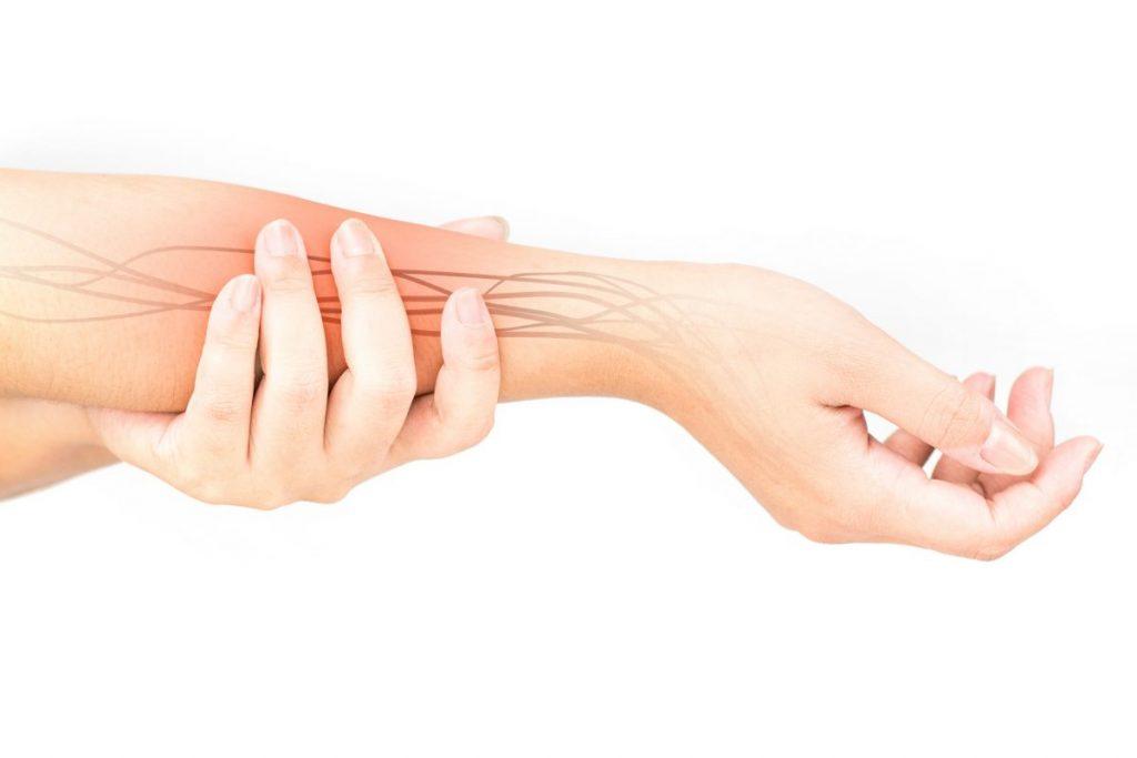 FAQS Ulnar nerve entrapment