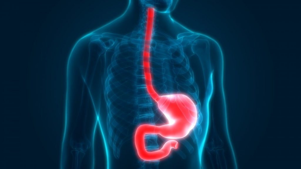 what is Esophageal achalasia