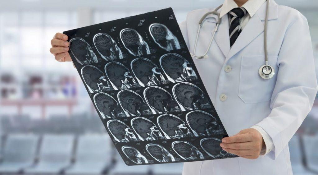 tumor Brain pressure