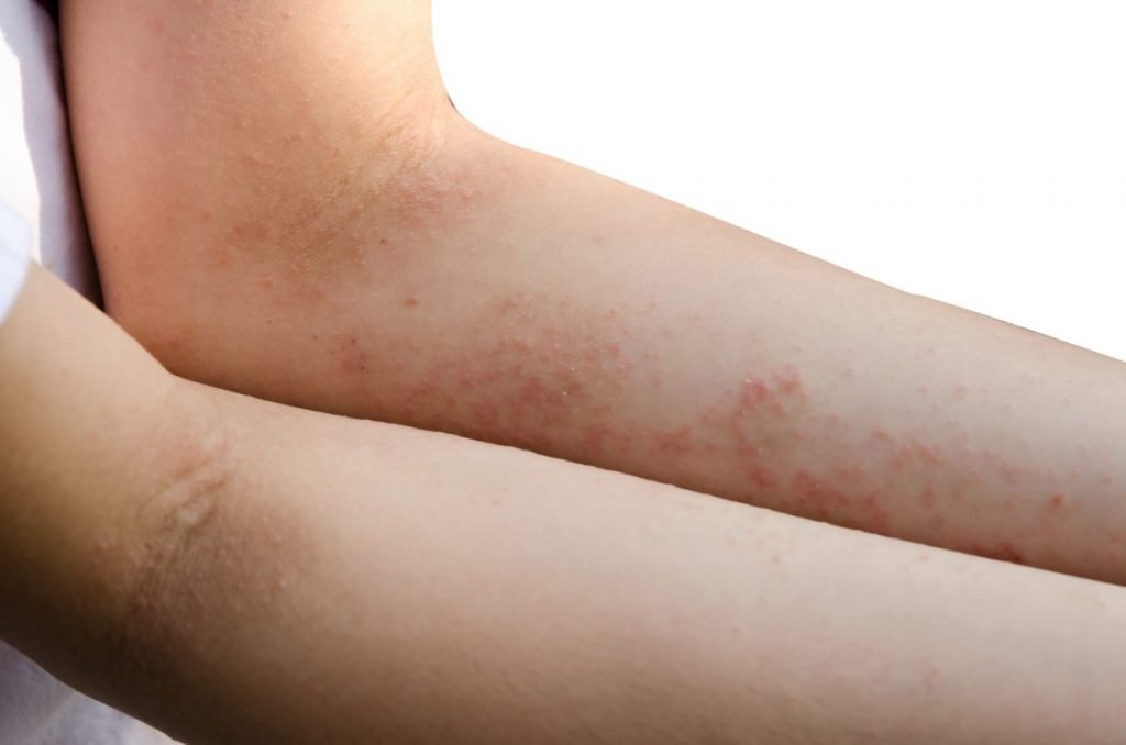 HIV infections skin