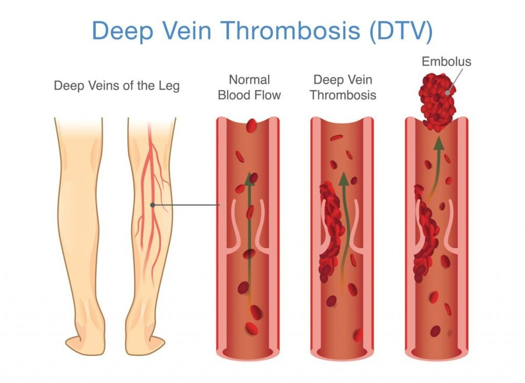 deep vein thrombosis, pulmonary embolism