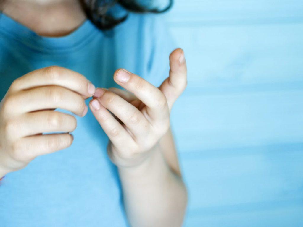 fingernails HIV infections